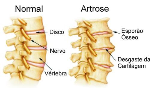 artroses